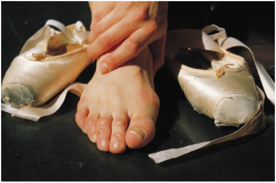 Dancing can beat up your feet - a  podiatrist can help
