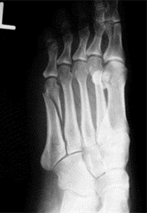 An x-ray of the foot