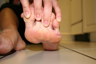 Blistered, callused dancer foot